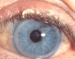 Crusting of the eyelashes in anterior blepharitis