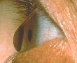 Keratoconus - conical cornea