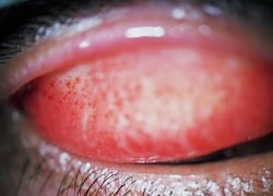 Pinpoint conjunctival hemorrhages on the inner surface of the upper eyelid