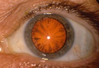 The red reflex of an eye with cortical cataract