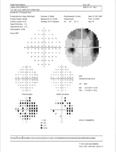 Humphrey Visual Field print out. The typical field loss of a patient with glaucoma.